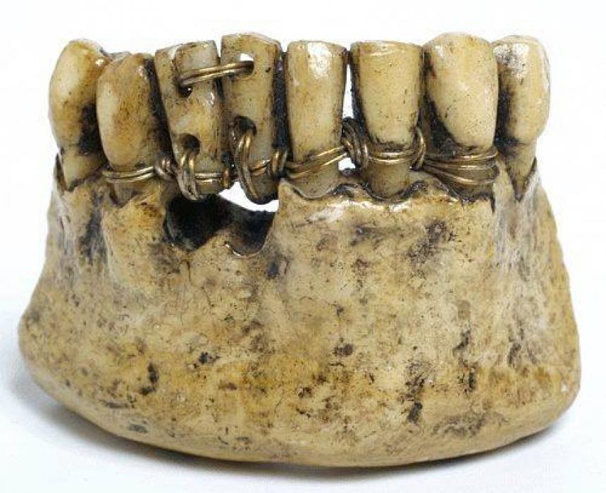 Установка коронок в 7-ой стоматологической поликлинике закончилось утратой 21-го зуба.